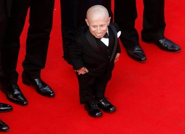 Coroner: Verne Troyer death suicide by alcohol intoxication
