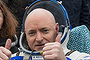 Astronaut Scott Kelly's skin burns after a year in space